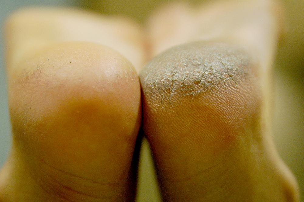 Skuteczny pedicure kwasowy na przykładzie zniszczonych stóp
